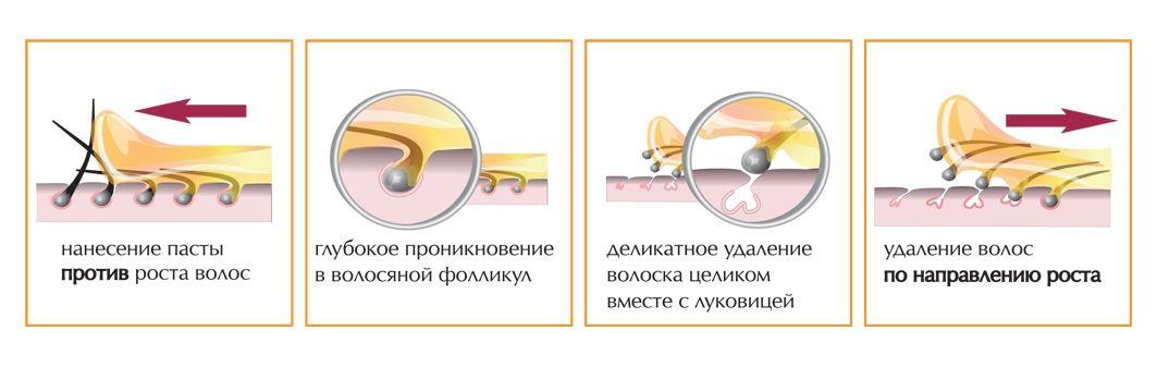 Процесс шугаринга